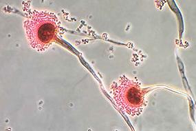 meningitis-aspergillus-fumigatus-285